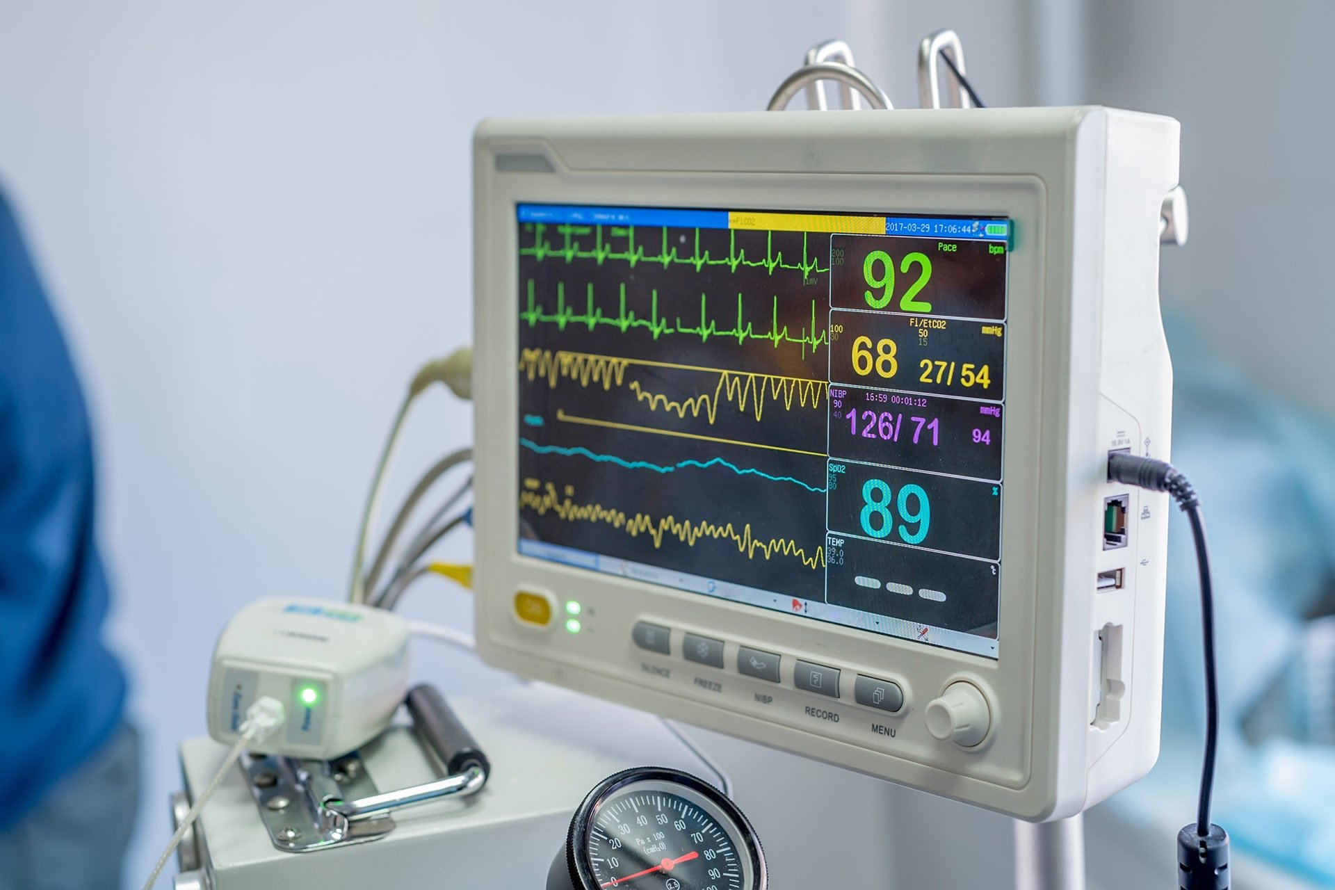 Anestezi Monitörü